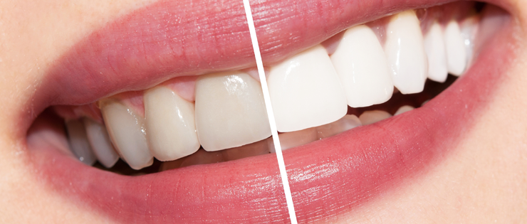 Teeth Whitening for Teenagers