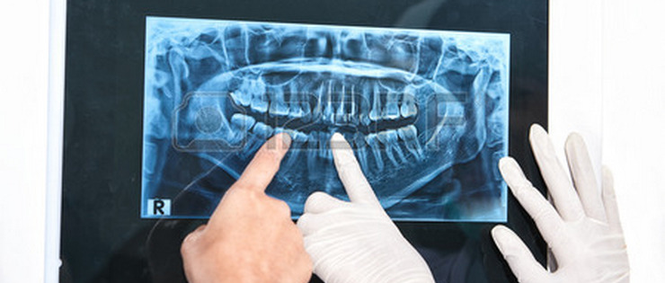 "Dental Health Article by Dr Emma - ""X-ray Safety"""