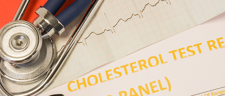 Tips for Your Cholesterol