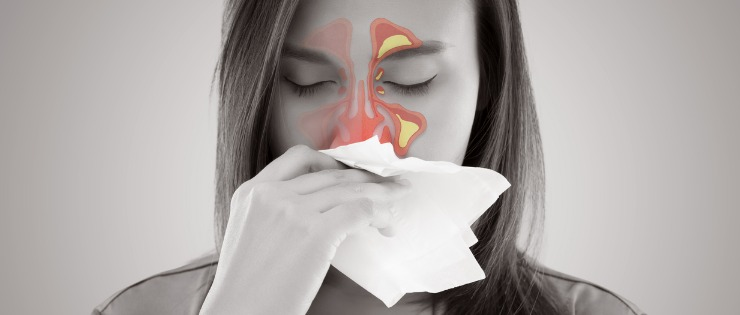 an image showing rhinitis (inflammation of the nasal cavity) both the cold and hay fever cause rhinitis